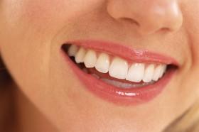 dantų-balinimas