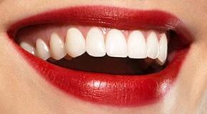 Odontologo paslaugos Vilniuje